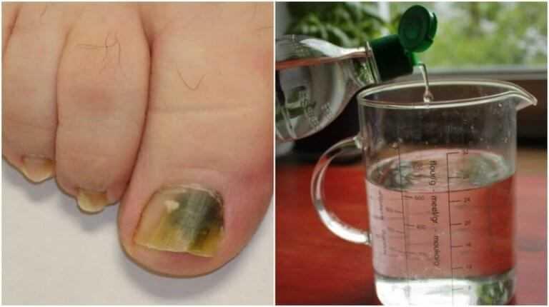 Água oxigenada para prevenir fungos das unhas fr