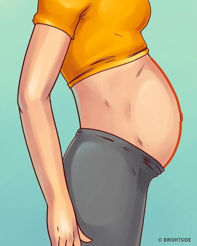 5 tipos de barriga que não são causados pelo excesso de peso