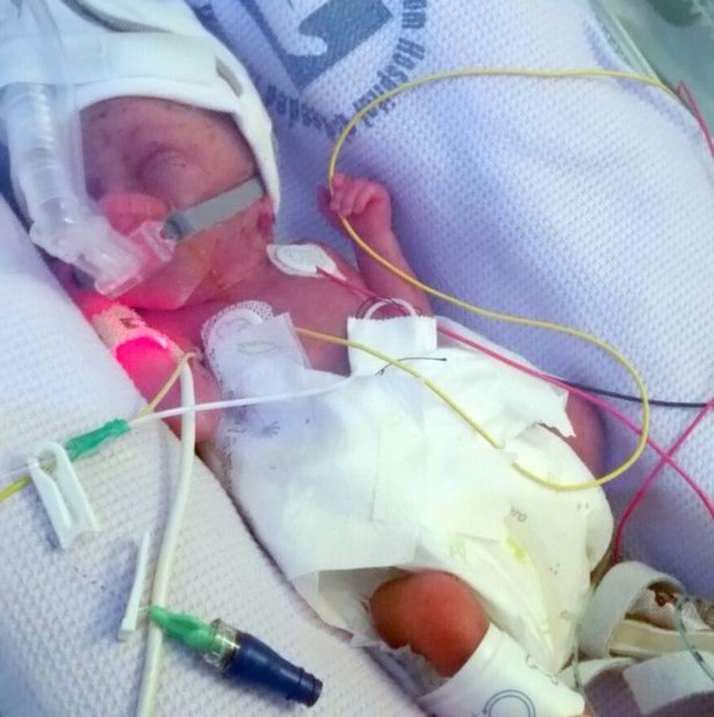 Médicos presenciam milagre ao ver recém-nascida de apenas 450 gramas respirar sem ajuda de aparelhos