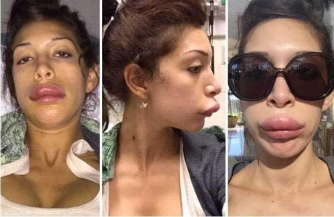 Atriz fez cirurgia para ter labios da Angelina Jolie, mas ficou a cara da Leela do Futurama! d