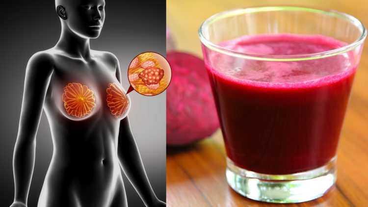 Este suco previne o câncer, limpa seu fígado e reduz a pressão alta