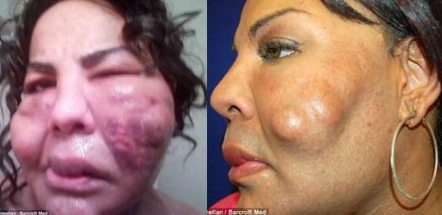 Mulher transgênero injetou cimento no rosto. Veja os acontecimentos 10 anos depois…