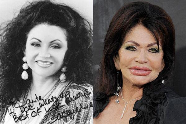 Os 20 piores resultados de cirurgias plásticas das celebridades