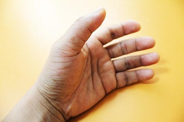 Problemas de saúde que as nossas mãos revelam antes