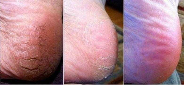 4 remédios caseiros simples para rachaduras nos pés 4q
