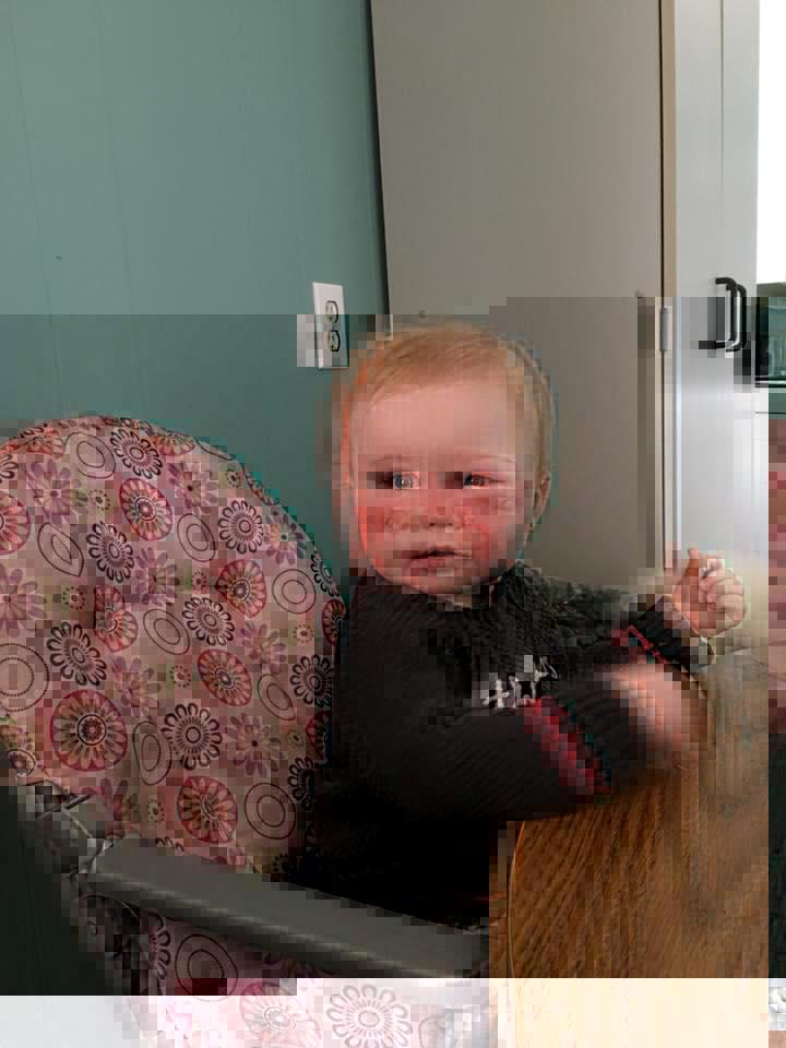 Bebê tem grave queimadura causada por 1 protetor solar e mãe alerta