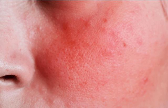 11 Sinais que revelam que sua pele está sofrendo os efeitos do estresse