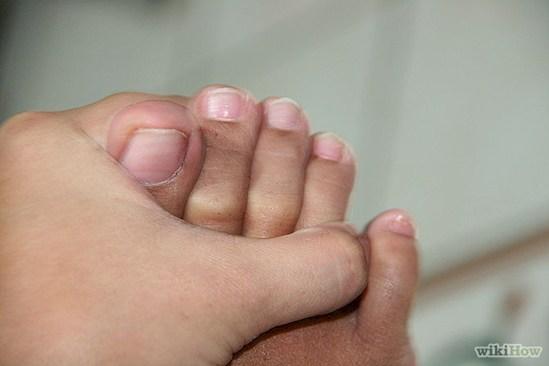 Não é possível separar o dedo mínimo do pé