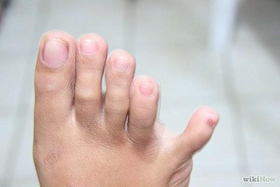 Capacidade para separar o dedo mínimo do pé