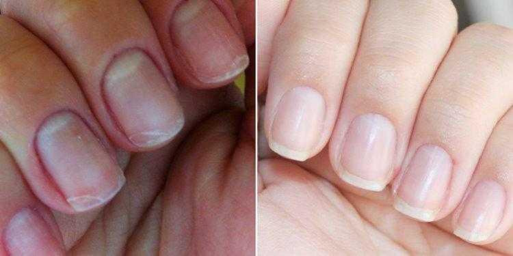 Tratamentos caseiros para fortalecer as unhas