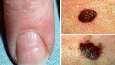 Foto de 4 Sinais urgentes que o nosso corpo envia para indicar que algo não está bem!