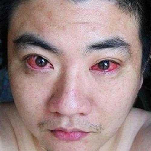 Homem é diagnosticado com câncer nos olhos por algo simples que quase todos fazemos a noite td