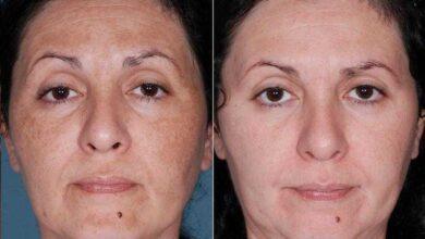 Foto de Máscara milagrosa para melasma e manchas no rosto