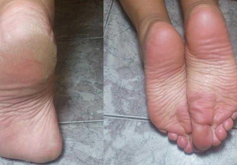 Aprenda tratar os pés rachados com repolho