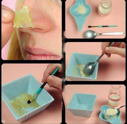 cera caseira para eliminar cravos da pele Cera caseira para eliminar cravos da pele