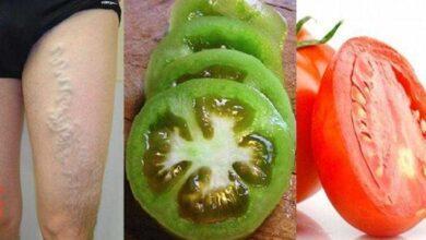 Como se livrar das varizes apenas com 2 tomates