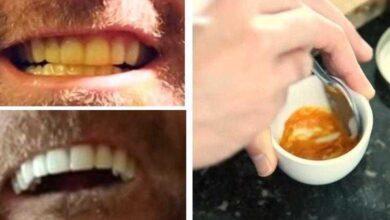 Homem clareia os dentes com um truque absurdamente simples. Veja!!