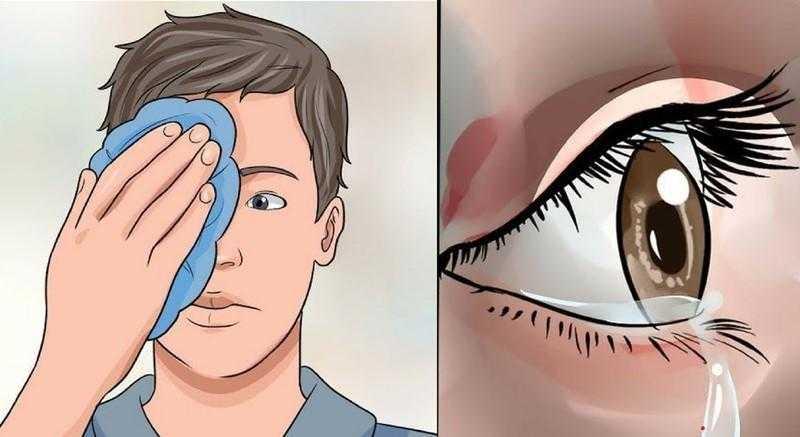 Remédios caseiros para coceiras nos olhos d