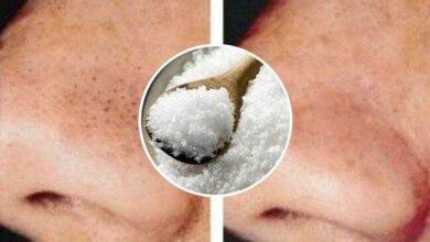 Foto de Como usar o sal contra cravos e espinhas