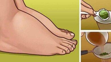 Excelente remédio caseiro para pernas inchadas