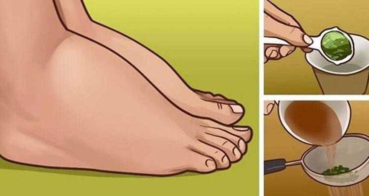 Excelente remédio caseiro para pernas inchadas 2