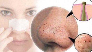 Foto de 5 máscaras faciais para remover os cravos