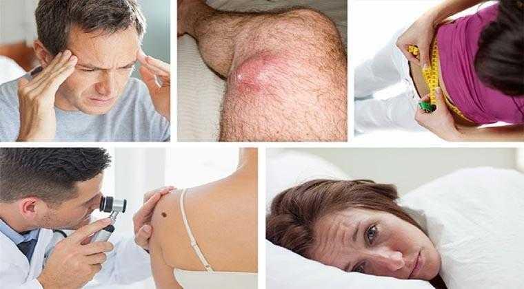 5 Sintomas de câncer que varias pessoas ignoram