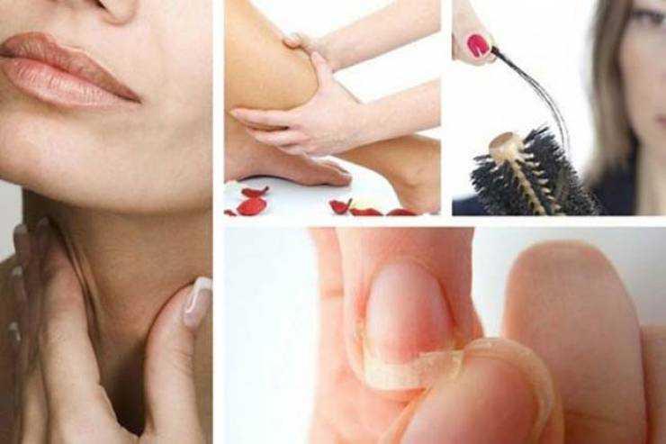 8 sinais de alerta preocupantes do hipotireoidismo 1s