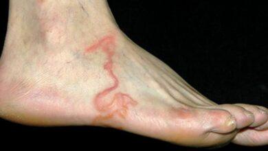 Ele pensa que são varizes, mas quando o médico olha seu pé… Chocante!