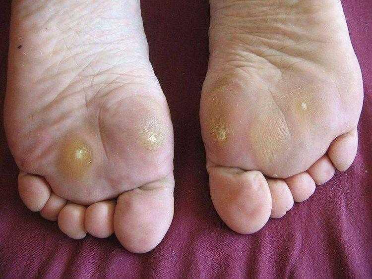 Forma eficaz de eliminar calos dos pés rapidamente