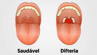 O Que é a Difteria?