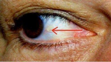 Foto de Os seus olhos podem indicar que está prestes a ter um ataque cardíaco