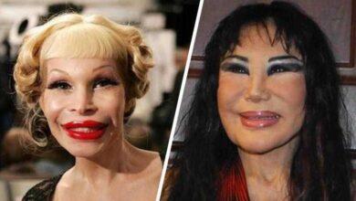 Photo of 10 Pessoas que exageraram no botox