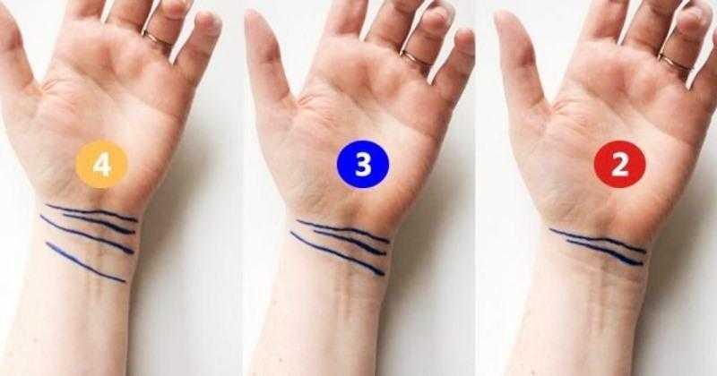 Você tem estas 4 linhas no pulso f
