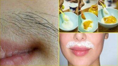 Acabe de vez com os pelos do buço e do rosto com esta receita natural!