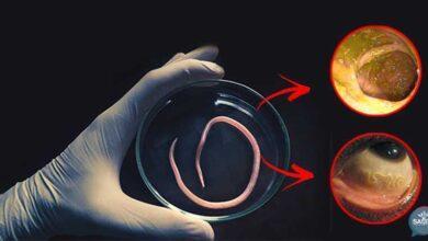10 Sinais de que existem vermes e parasitas em seu corpo