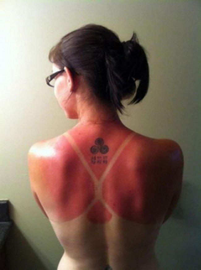 15-18-pessoas-que-esqueceram-o-quanto-as-marcas-de-sol-podem-ser-constrangedoras-as-vezes