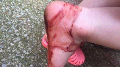Atenção com as sandálias de plástico, veja o que aconteceu com essa menina!