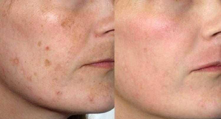 Como fechar os poros do rosto: 6 receitas caseiras