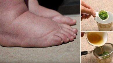 Foto de Excelente remédio caseiro para pernas e pés inchados