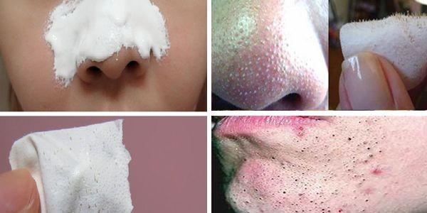 Tire os cravos do seu rosto em apenas 15 minutos