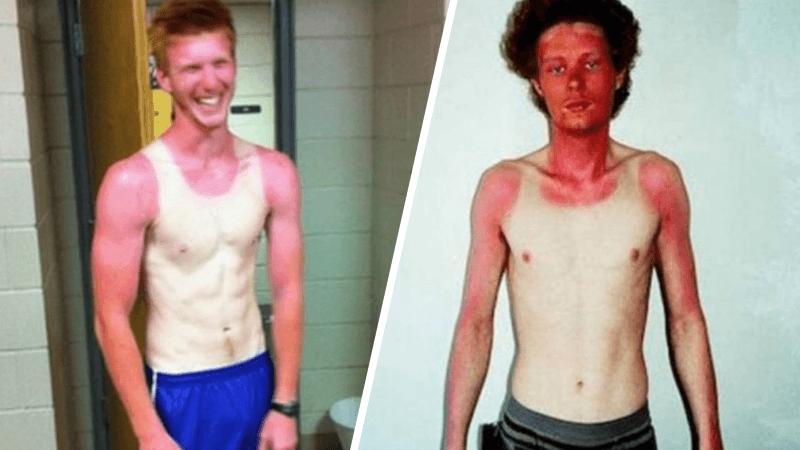 17 Pessoas que esqueceram o quanto as marcas de sol podem ser constrangedoras