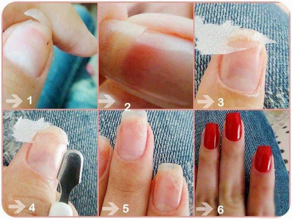 Veja como reparar unha quebrada sem cortar