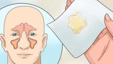 Como eliminar a congestão nasal em poucos minutos