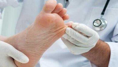 Como evitar frieiras nos pés e nas mãos