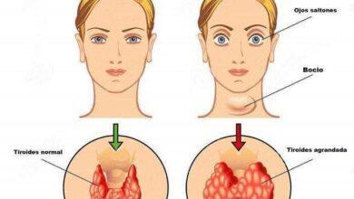 Foto de 8 sinais de disfunção na tireoide e que 25 milhões de pessoas ignoram