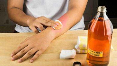 Foto de Como aliviar as dores da artrite com vinagre de maçã