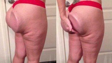 Mulher colocou implante de silicone no bumbum, mas o resultado final r