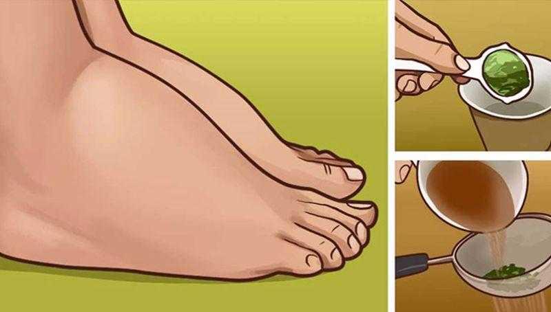 Melhor remédio caseiro para pernas inchadas
