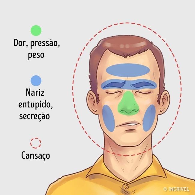 1489355503 666 aprende como aliviar rapidamente estes 5 tipos de dores de cabeca Como aliviar rapidamente 5 tipos de dores de cabeça